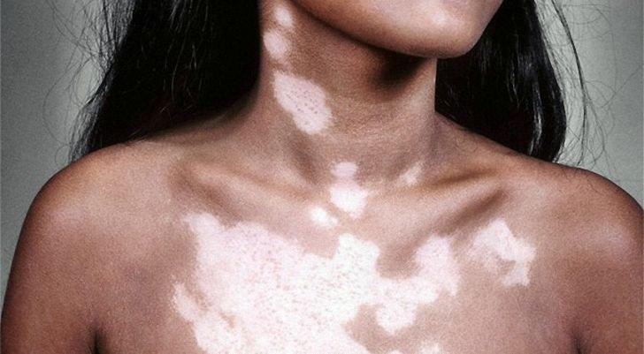 Чем лечить пятна на коже