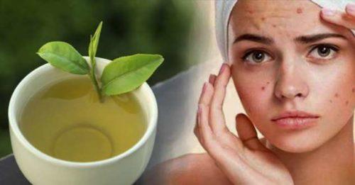 7 рецептов красоты для кожи лица: как избавиться от угревых шрамов
