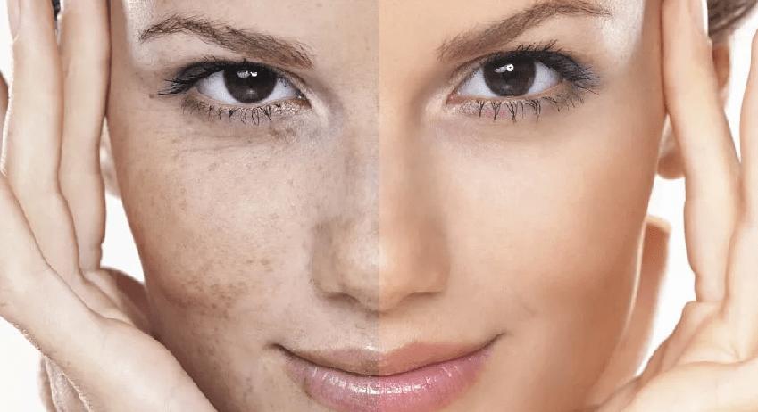Как улучшить кожу лица и тела?