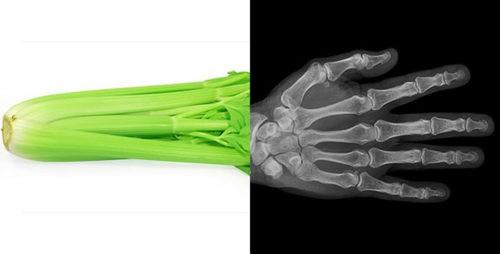 Сельдерей=кости